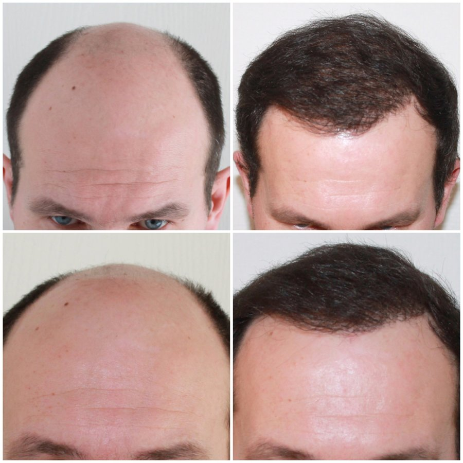 Best hair transplant clinics in London