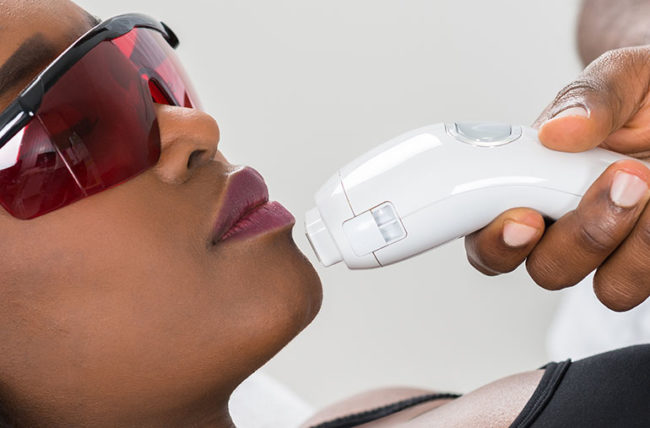 When to Consider Laser Hair Removal